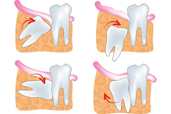 Удаление зуба мудрости хирургическим путем