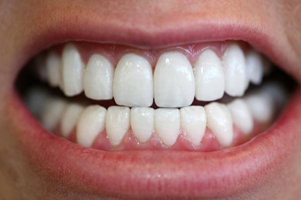 идеальные зубы фото