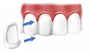 Установка винира на зуб